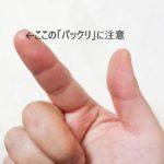 棒針を指先で押しちゃう人必見!指先の「ぱっくり」にご注意!